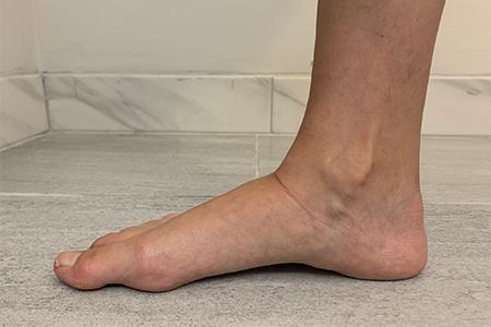 woman's-foot