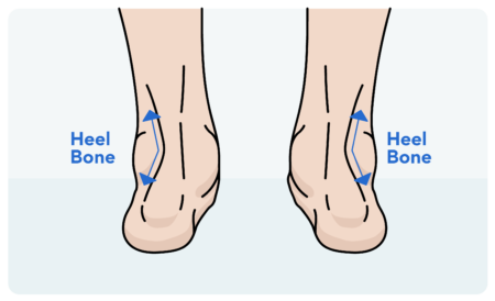 How to Determine Rolled Ankles