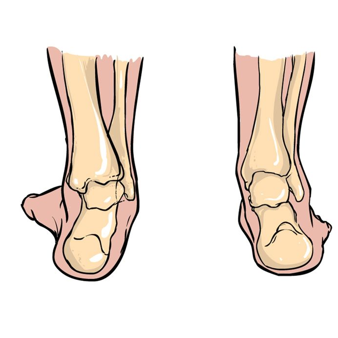 women's-shoes-for-supination