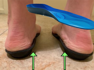 best-orthotics-for-women