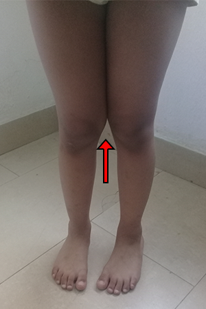 Woman with Knock Knees