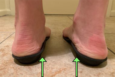 Orthotics for Women with Foot Pain
