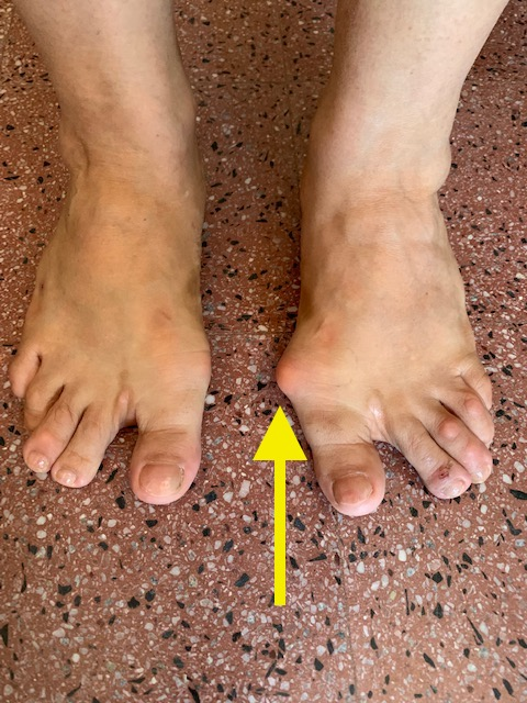 woman-with-bunions