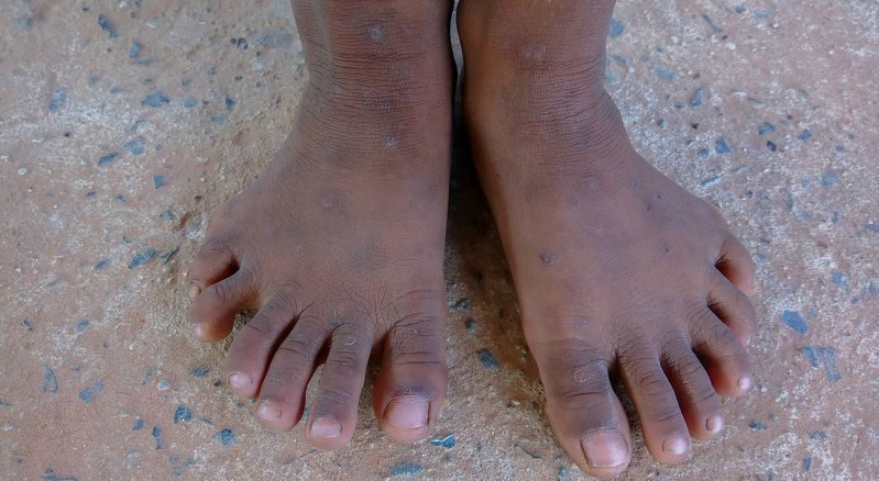 Woman With Six Toes