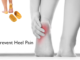 best-heel-cups-for-women-with-heel-pain