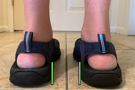 Supportive Sandals for Women with Overpronation