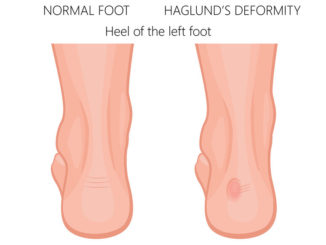 women's-shoes-for-haglund's-deformity