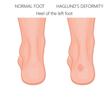 Women's Shoes For Haglund's Deformity