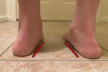 Woman with Flat Feet