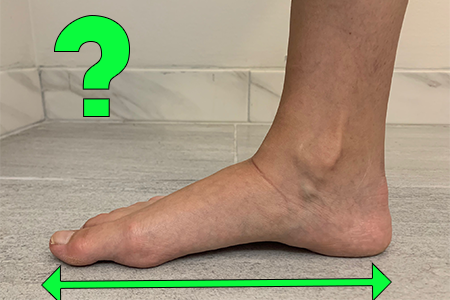 Does my Foot Shape Changes Over Time