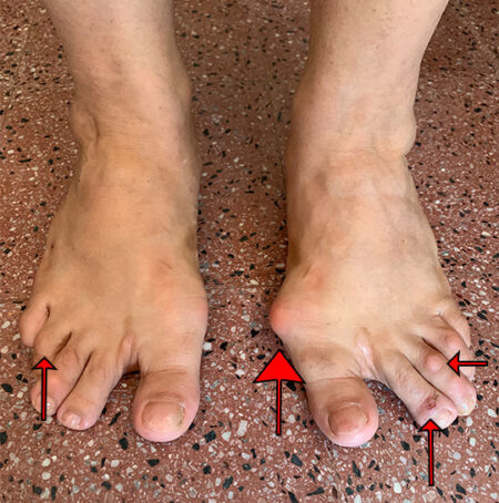 woman-with-bunion-and-blisters
