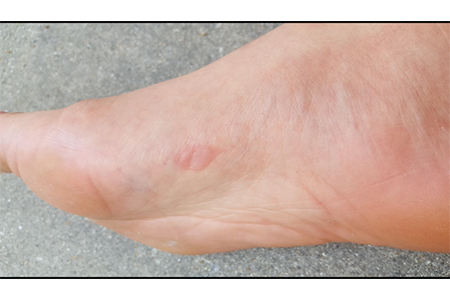 woman-with-blister