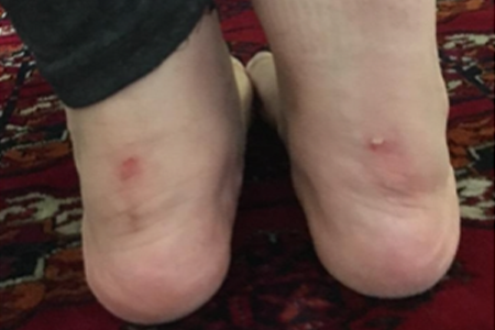 Woman with Blister