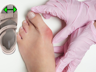 best-sandals-for-women-with-bunions