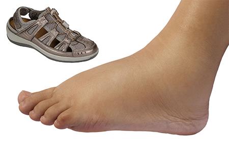 best-sandals-for-diabetic-women